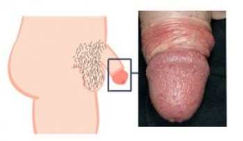 Молочница, симптомы, фото, лечение у мужчин и женщин