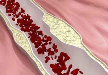Холестерин: наш друг или враг?