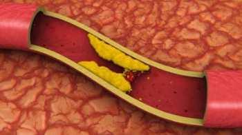Холестерин: нормальный уровень холестерина, повышенный холестерин