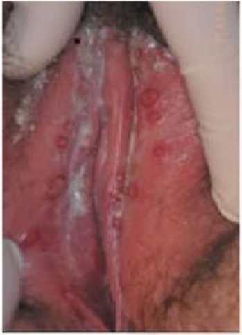 Молочница у женщин: симптомы, лечение молочницы :: Здоровье :: JustLady